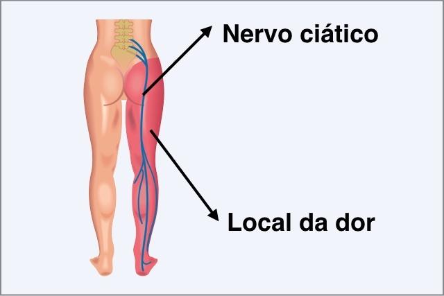Nervo Ciático